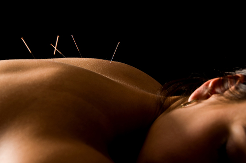 Acupuncture treatments proven successful