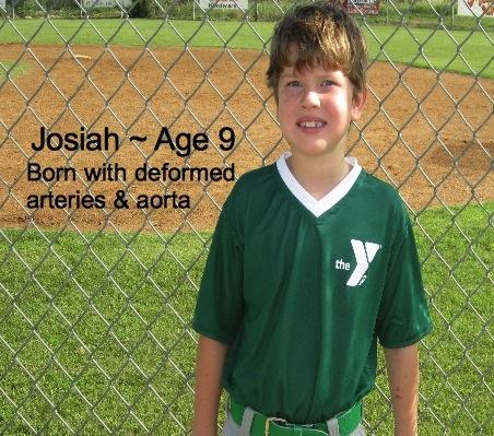 Josiah-9-Deformed arteriesandaorta.jpg