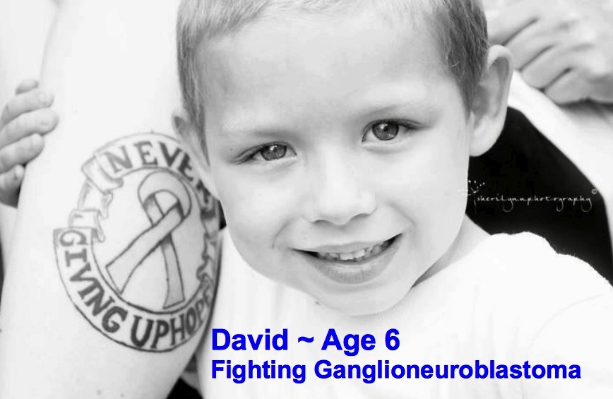 7-David-6-Ganglioneuroblastoma.jpg