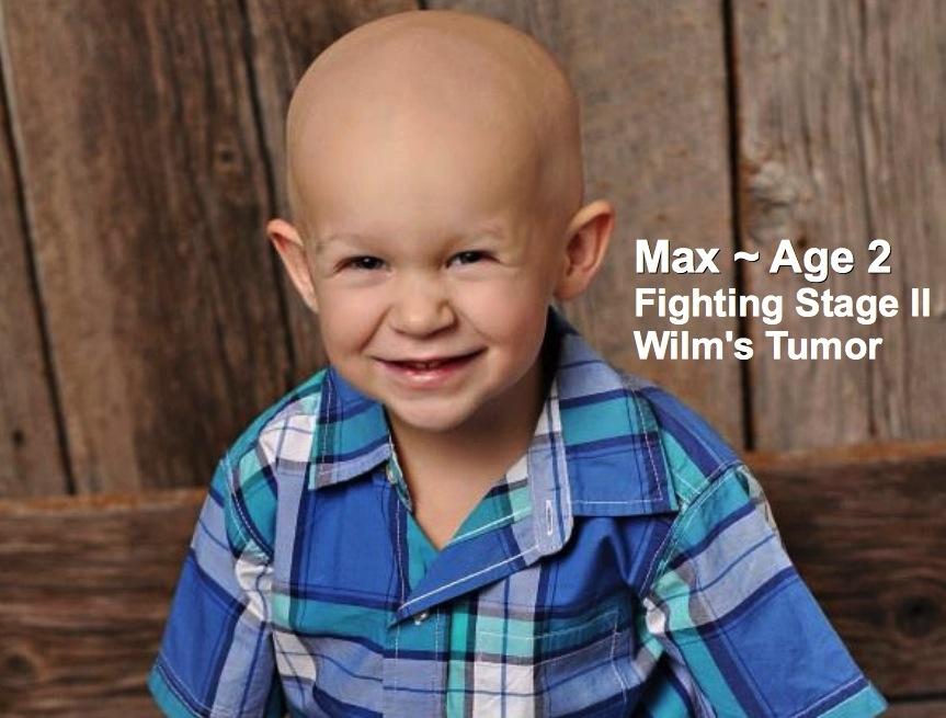 17-Max-2-Stage 11 Wilm's Tumor.jpg