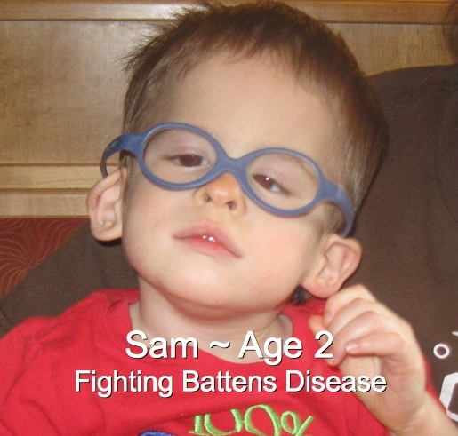 63-Sam-2-Battens Disease.jpg