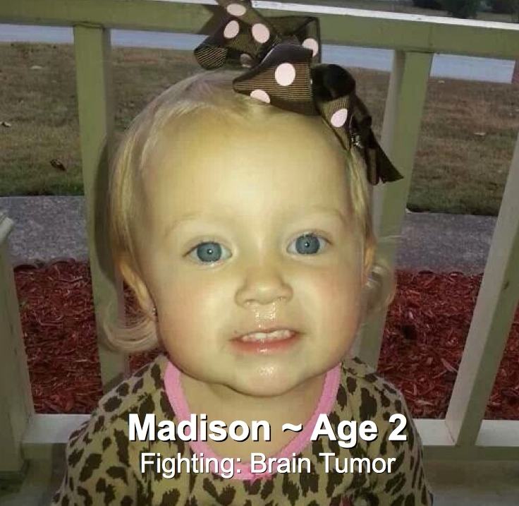 67-Madison-2-Brain Tumor.jpg
