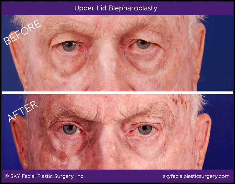 Example of functional blepharoplasty to correct drooping eyelids.