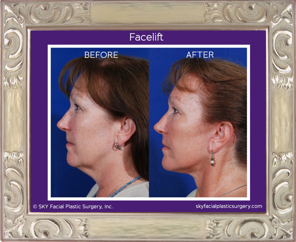 SKY-Facial-Plastic-Surgery-Facelift-1B.jpg