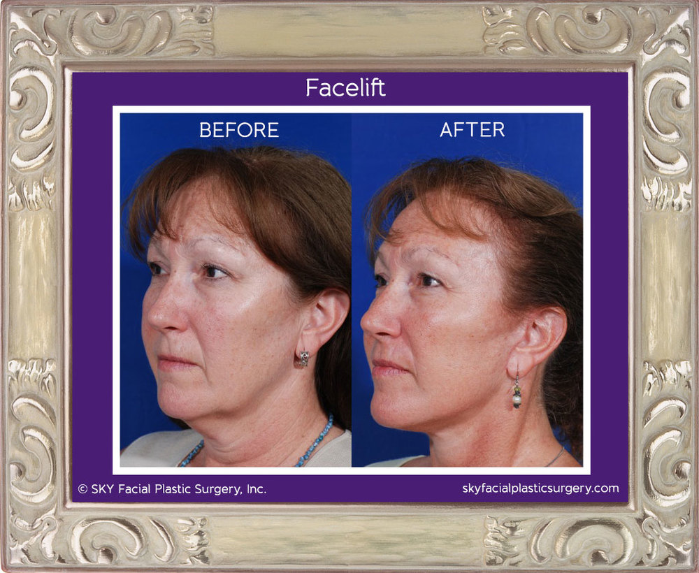 SKY-Facial-Plastic-Surgery-Facelift-1C.jpg