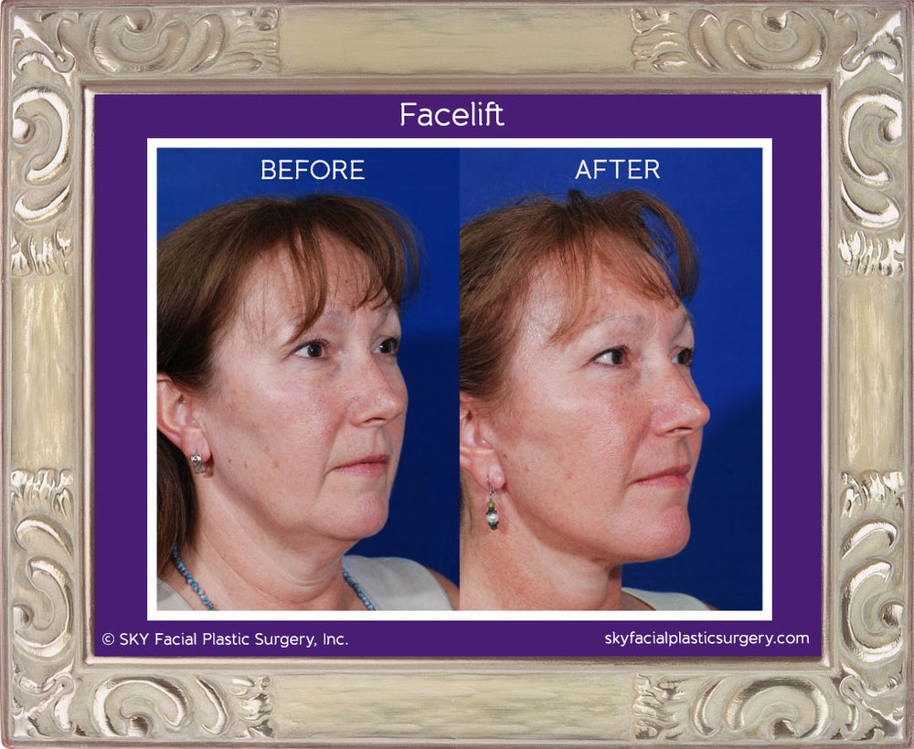 SKY-Facial-Plastic-Surgery-Facelift-1D.jpg