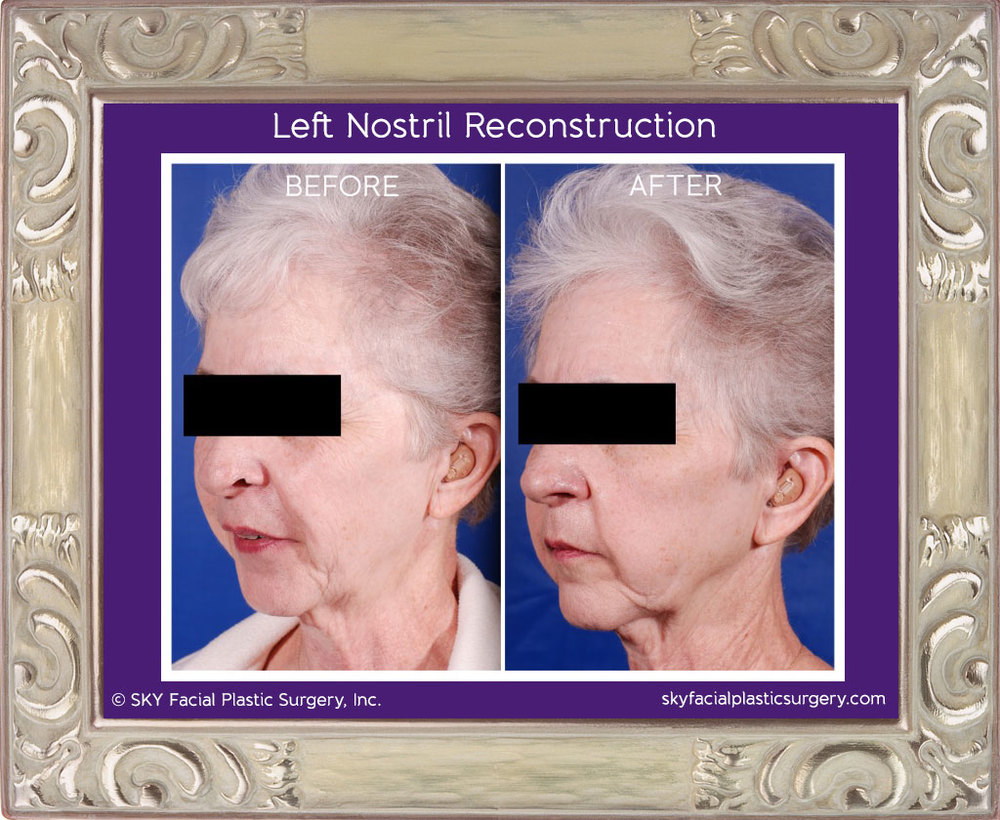 Mohs reconstruction of left nostril.  This lady had failed a previous attempt to reconstruct the left nasal ala with a melolabial flap by another surgeon.  She asked Dr. Yoo to help with the cookie bite deformity.  A composite graft from the left ear was used to restore the natural contour of the nose.