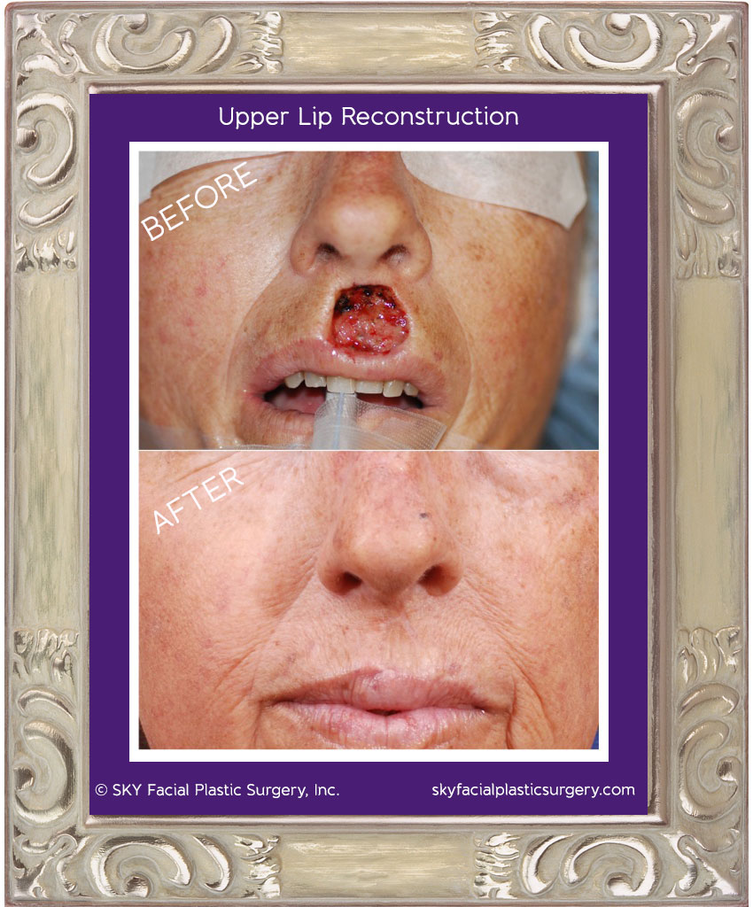 Mohs defect of the upper lip was repaired with a combination of advancement flaps and skin grafting of the philtrum.