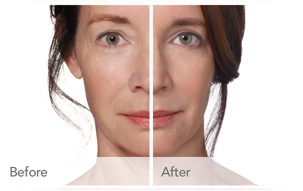 What to Expect with Radiesse — SKY Facial Plastic Surgery