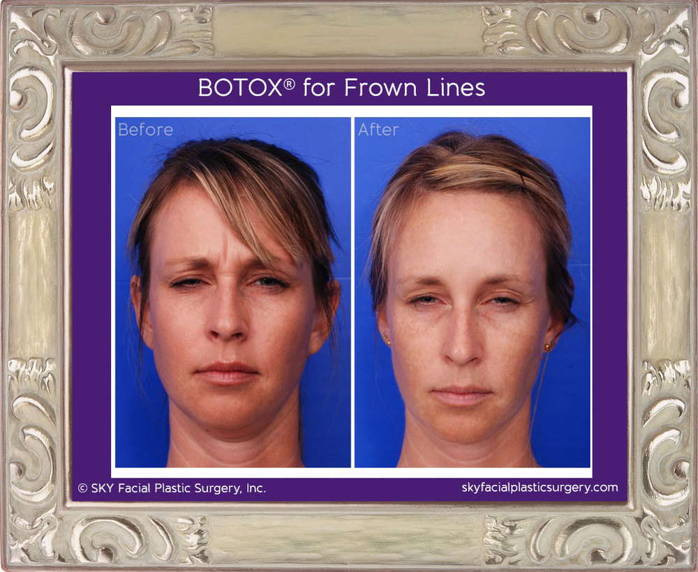 Botox for frown lines