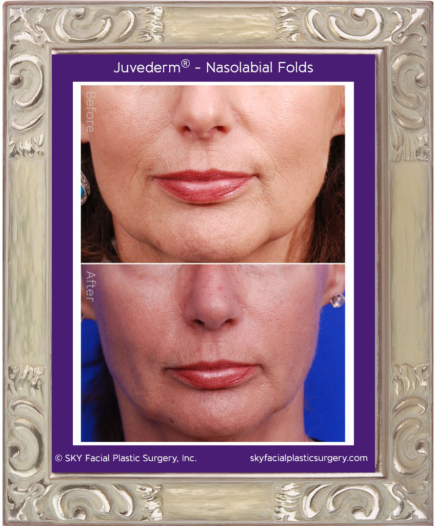 Juvederm used to fill nasolabial folds