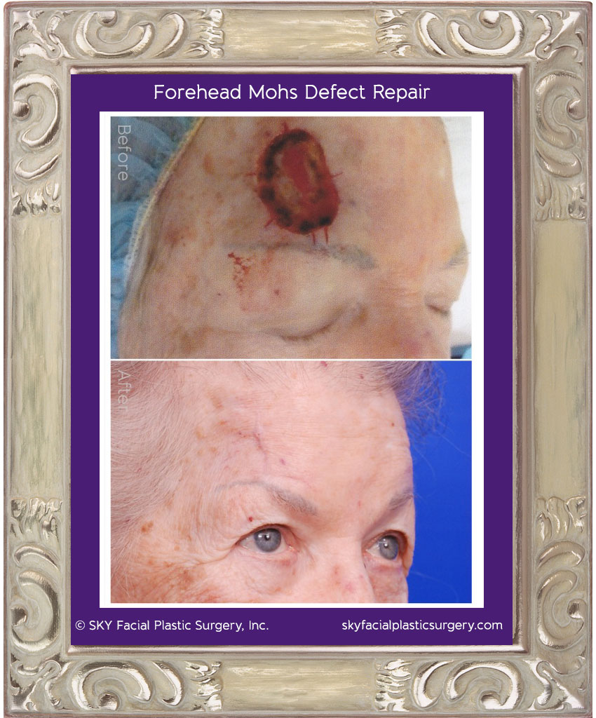 Large right forehead defect from squamous cell carcinoma.  After Mohs surgery, this was repaired with a modified O to T closure.