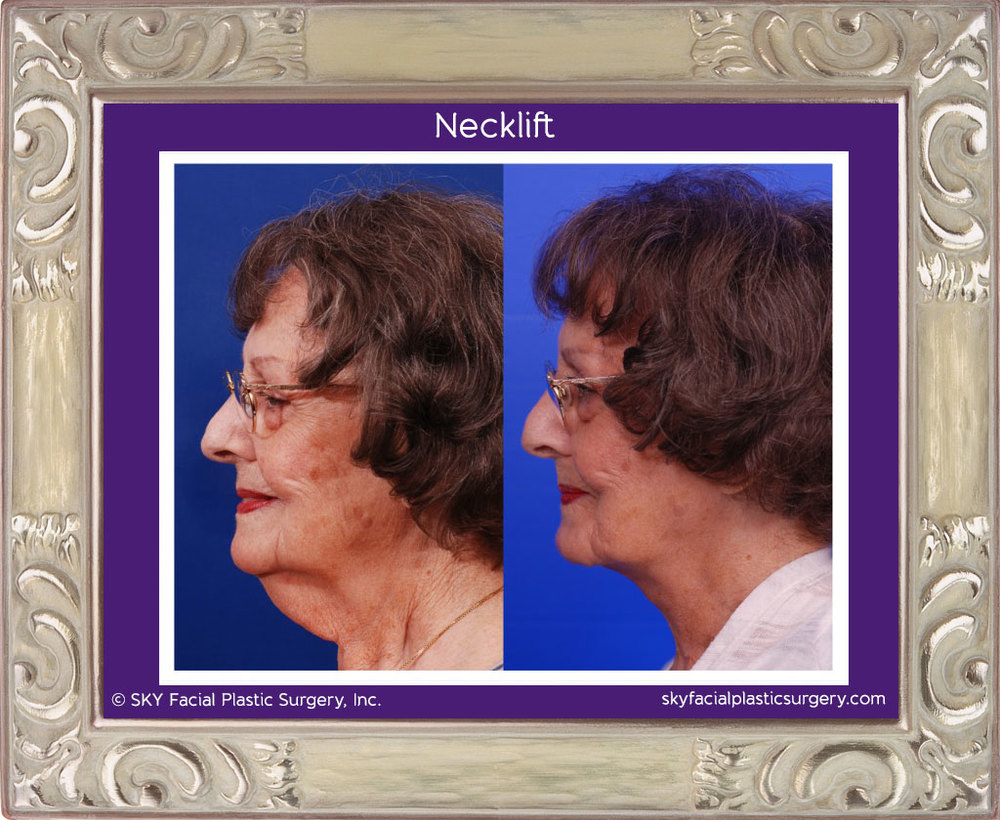 SKY-Facial-Plastic-Surgery-Facelift-3A.jpg