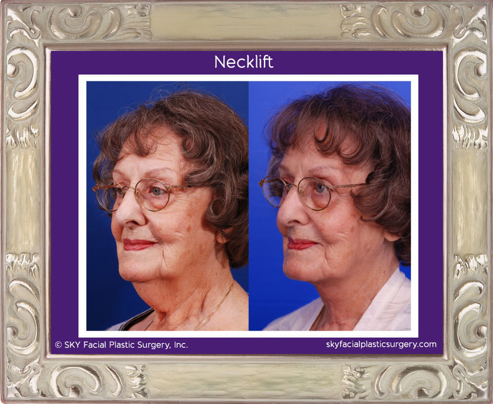 SKY-Facial-Plastic-Surgery-Facelift-3B.jpg