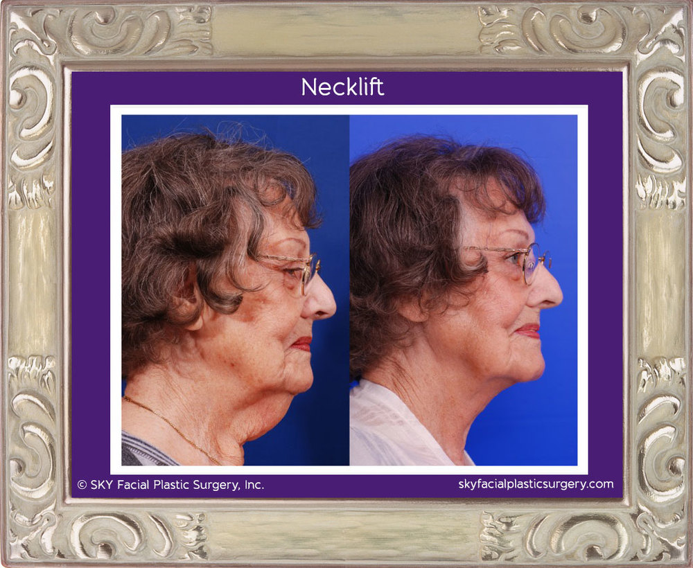 SKY-Facial-Plastic-Surgery-Facelift-3D.jpg