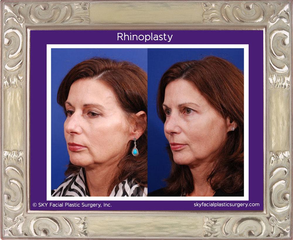 Rhinoplasty - San Diego