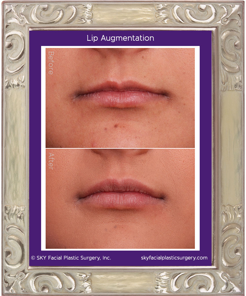 Juvederm for lip augmentation