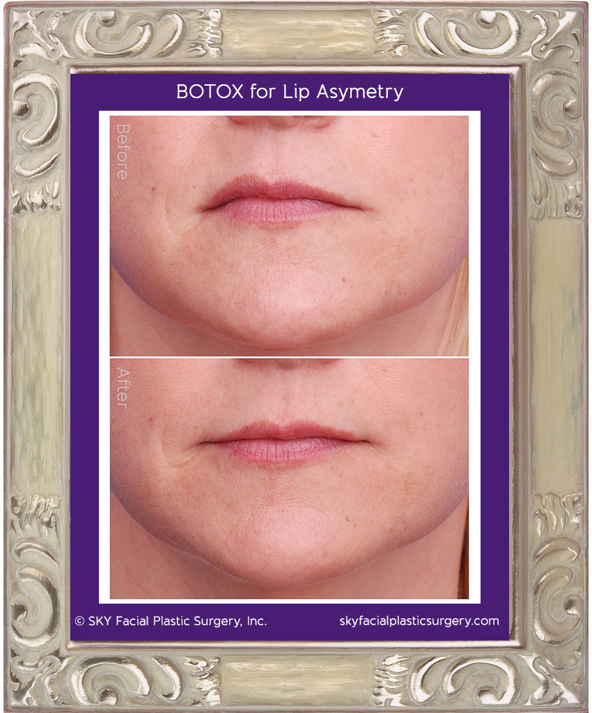 Botox for lip asymmetry