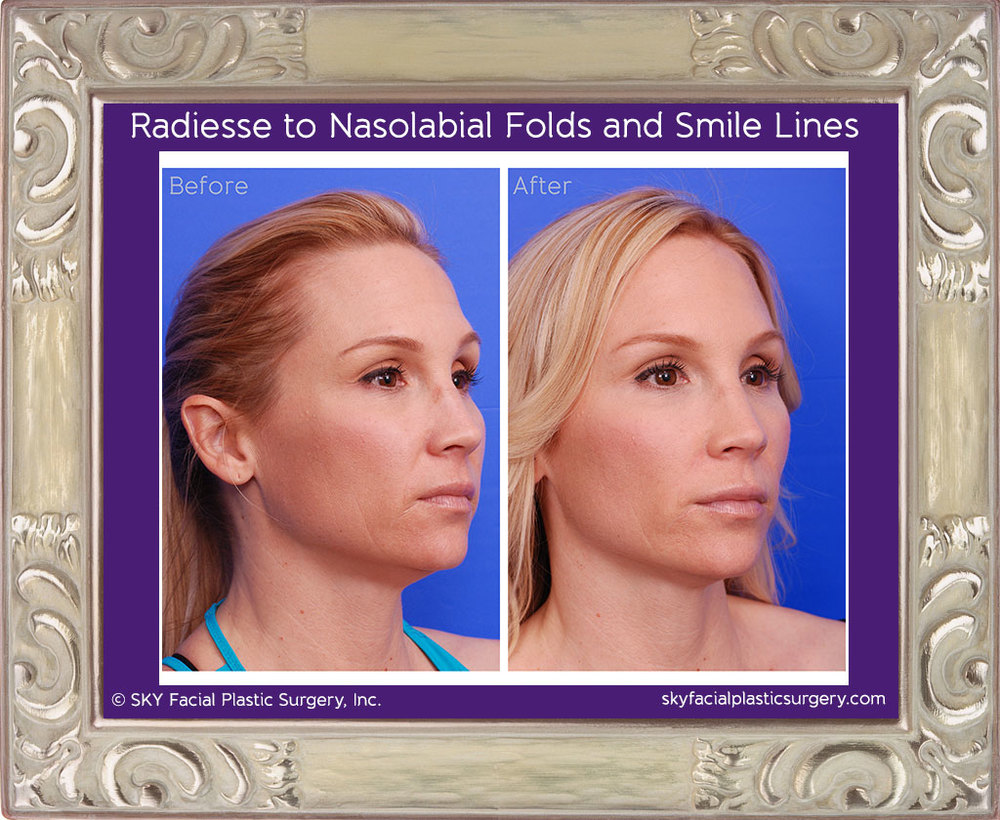 Juvederm for nasolabial fold wrinkles