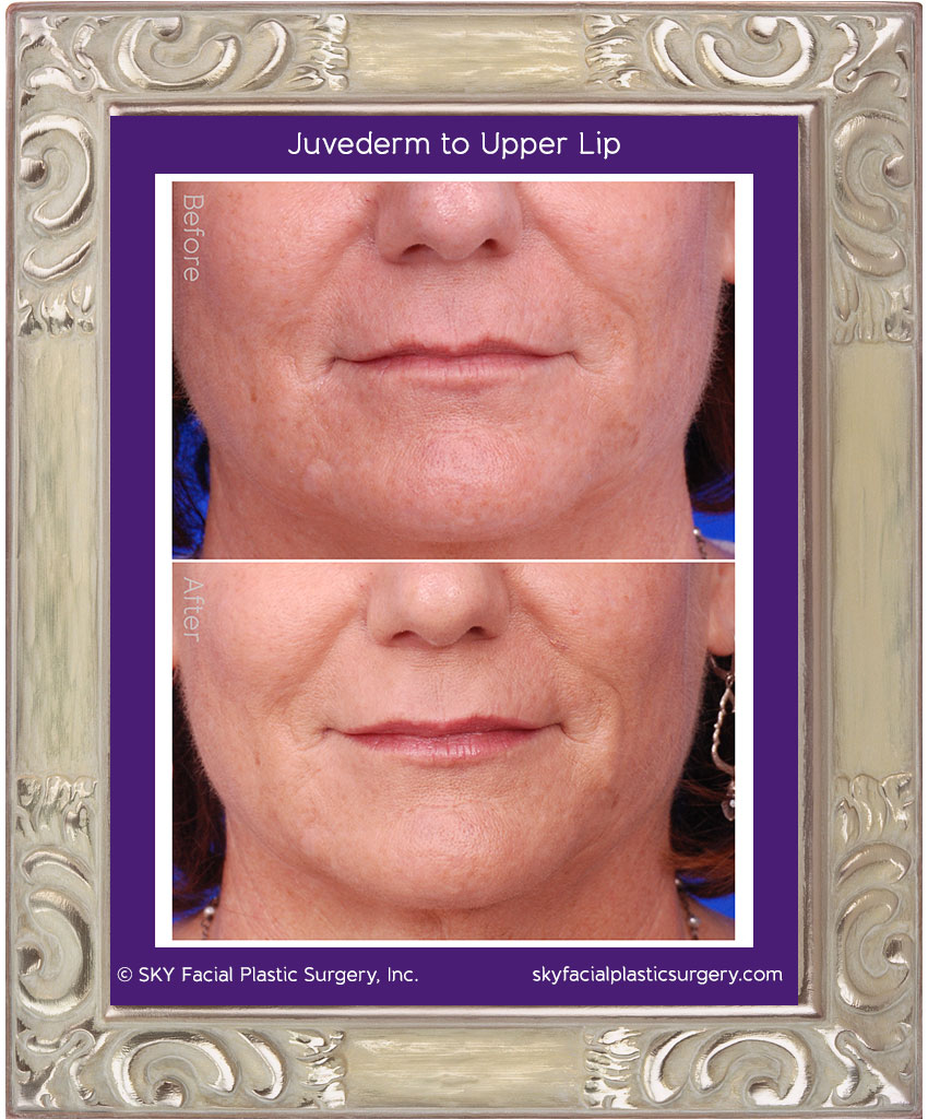 Juvederm for lip rejuvenation