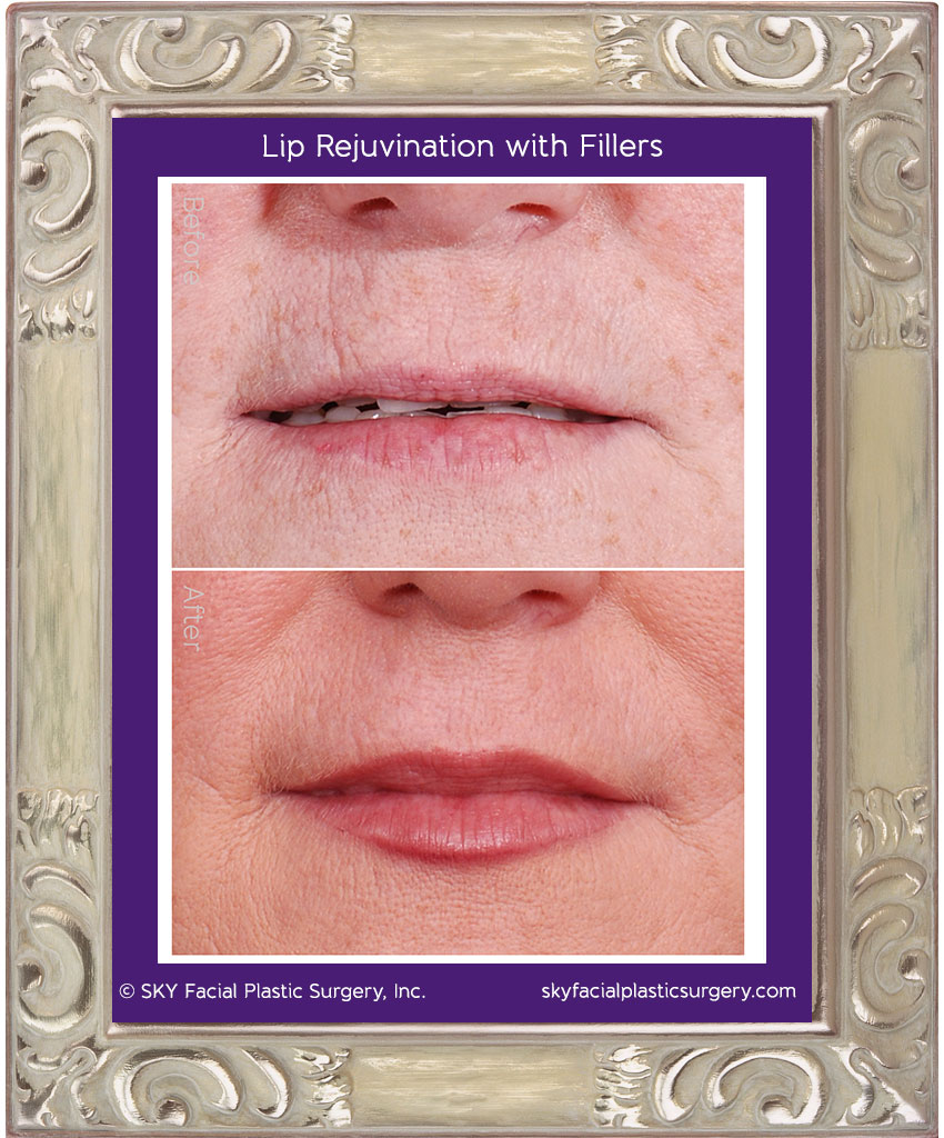 Lip Rejuvination wtih Fillers