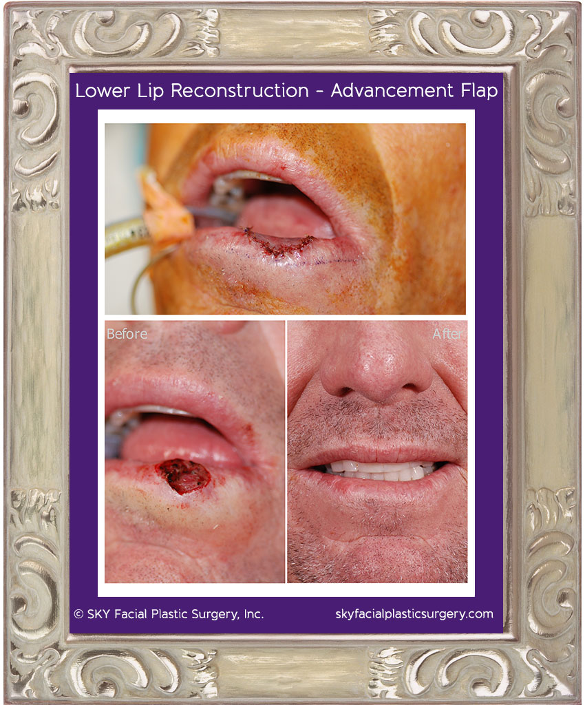 Advancement of a mucosal flap was used to repair this left lower lip squamous cell carcinoma defect.  Lower left photo shows the defect after Mohs surgery to remove the cancer.  Top photo shows immediately after reconstruction.  Bottom right photo shows the healed lower lip 3 months after reconstruction.