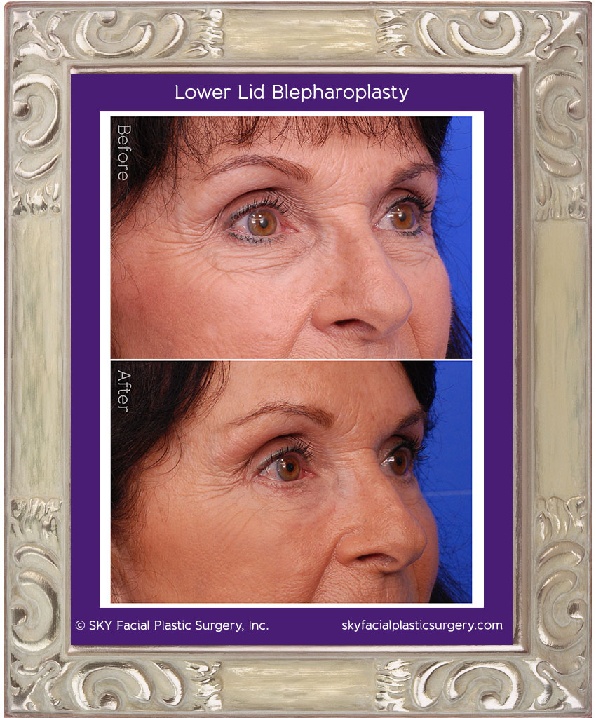 Lower lid blepharopasty