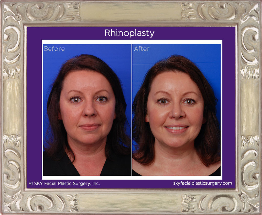 Cosmetic rhinoplasty - Frontal Comparison