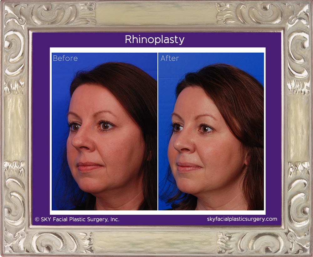 Cosmetic Rhinoplasty - Left TQ Comparison - San Diego