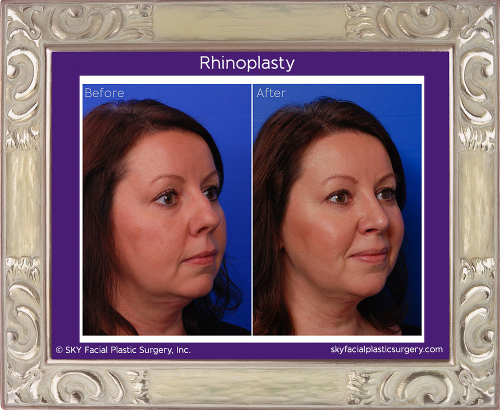 Cosmetic Rhinoplasty - Right TQ Comparison - San Diego