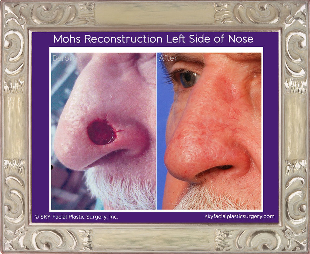 70 year-old gentleman with basal cell carcinoma of the left nasal sidewall and ala.  Reconstruction was performed with a bilobe (modified Zitelli) flap.  Results are shown 5 months after the operation.