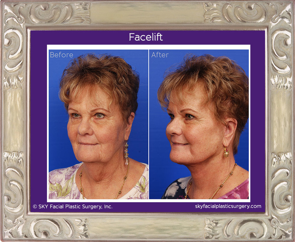 SKY-Facial-Plastic-Surgery-Facelift-5C.jpg