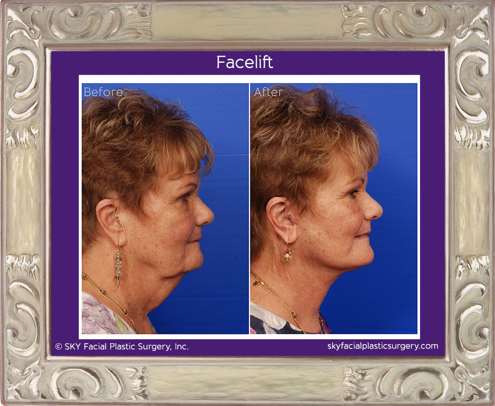 SKY-Facial-Plastic-Surgery-Facelift-5D.jpg