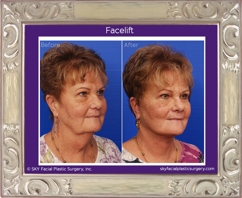 SKY-Facial-Plastic-Surgery-Facelift-5E.jpg