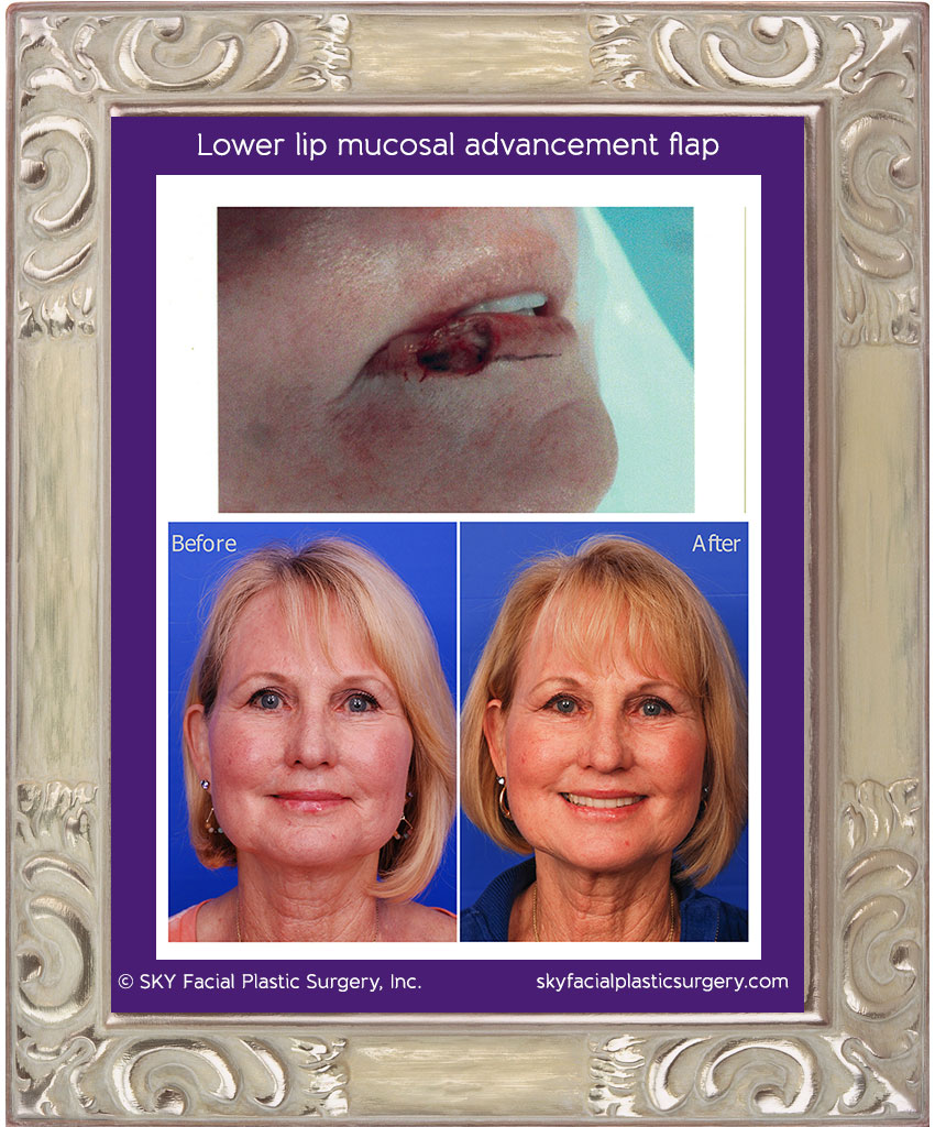 69 year-old woman with squamous cell carcinoma of the lower lip. A dermatologic surgeon performed Mohs surgery to remove the tumor. The defect is shown in the top photo. A mucosal advancement flap was used to reconstruct the defect.  Results are shown 1 year later.