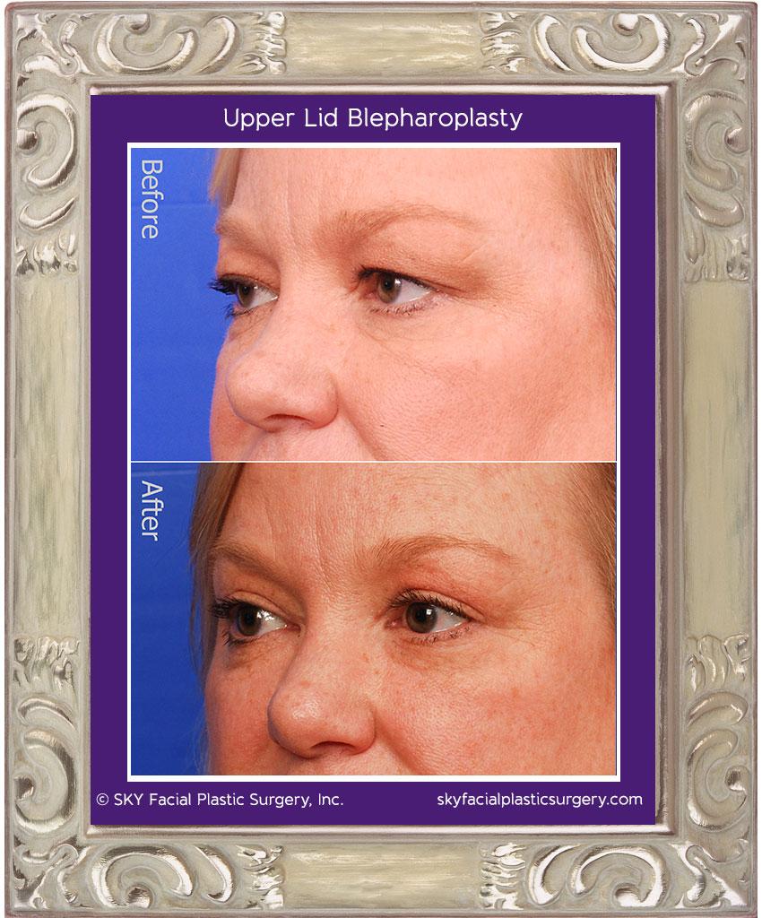 SKY-Facial-Plastic-Surgery-Upper-Lid-Blepharoplasty-4C.jpg