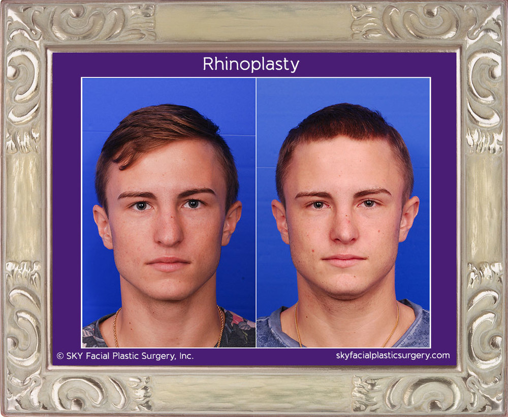 Male rib rhinoplasty - Frontal View
