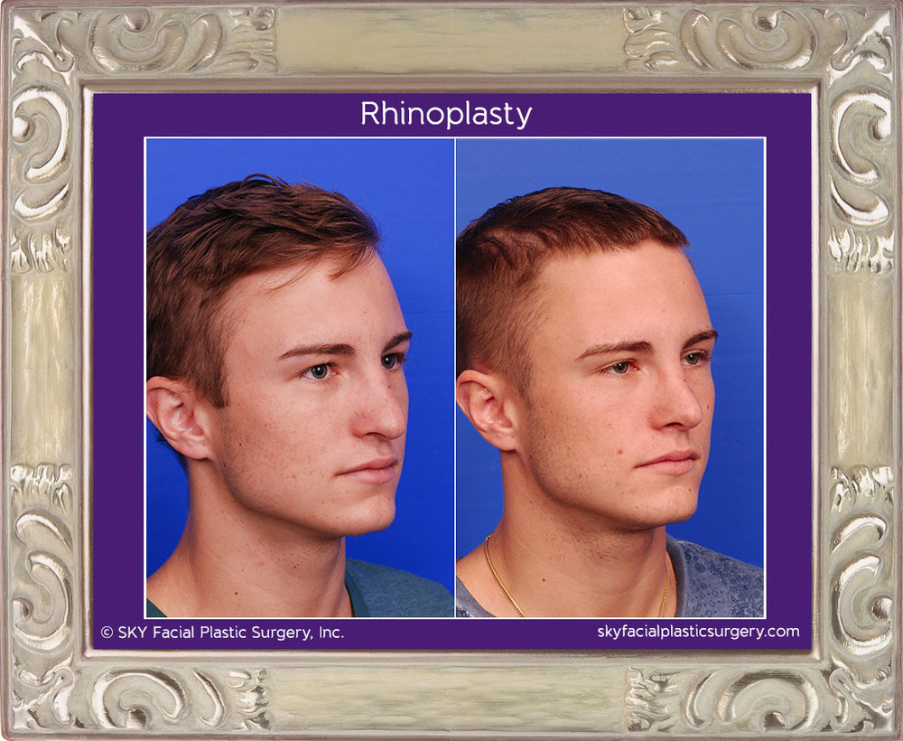 Male Rib Rhinoplasty - Left Oblique View