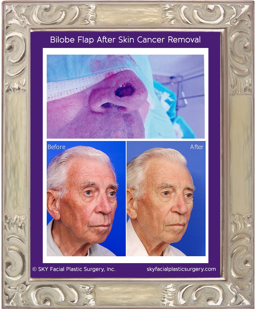 83 year old gentleman with skin cancer on the right nasal tip.  This was removed by a dermatologic surgeon using Mohs surgery techniques.  Dr. Yoo reconstructed the defect shown in the top photos with a modified Zitelli bilobe flap.  Results are shown 6 months after surgery.