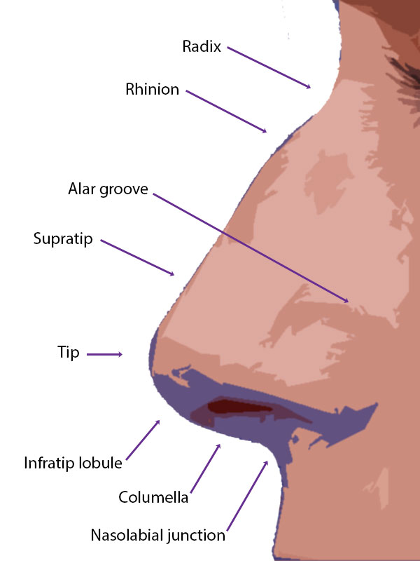 Soft tissue landmarks of the nose on lateral view.