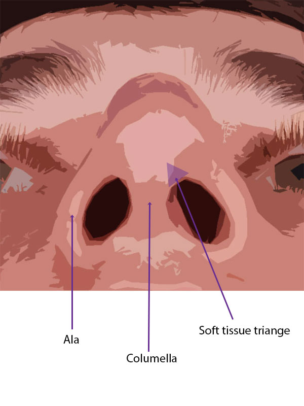 Soft tissue landmarks of the basal view of the nose.  The left soft tissue triangle is shaded in light purple.