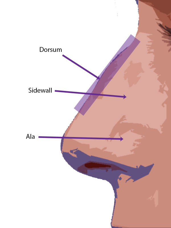 Nasal subunits - The dorsum is the broad area over the top of the bridge of your nose.  The ala are the wings off to the side of your nasal tip.  The side walls are the area above the ala and lateral to the dorsum down to the nose cheek junction.