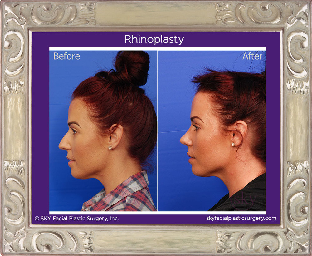 Female cosmetic rhinoplasty (nose job)