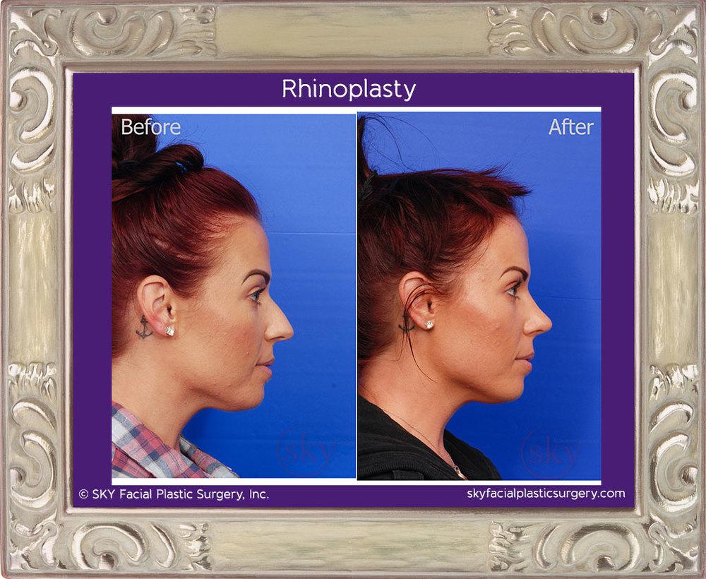 Copy of Female cosmetic rhinoplasty (nose job)