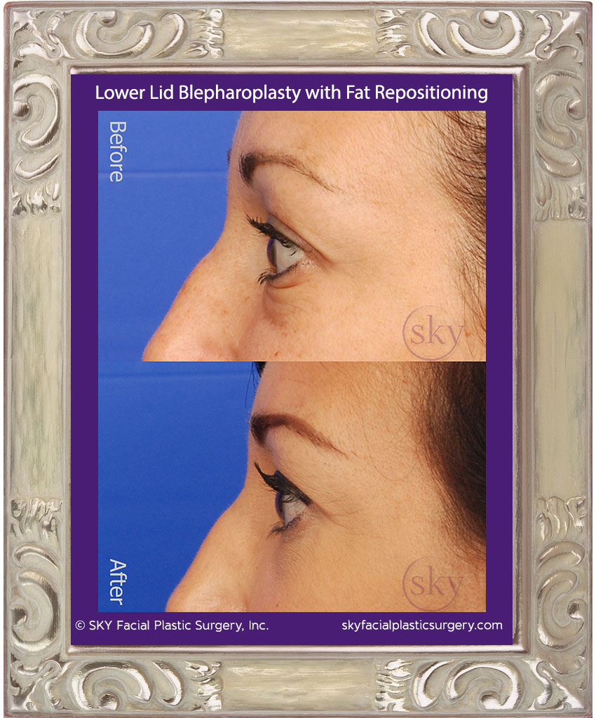 Lower lid blepharoplasty with fat repositioning