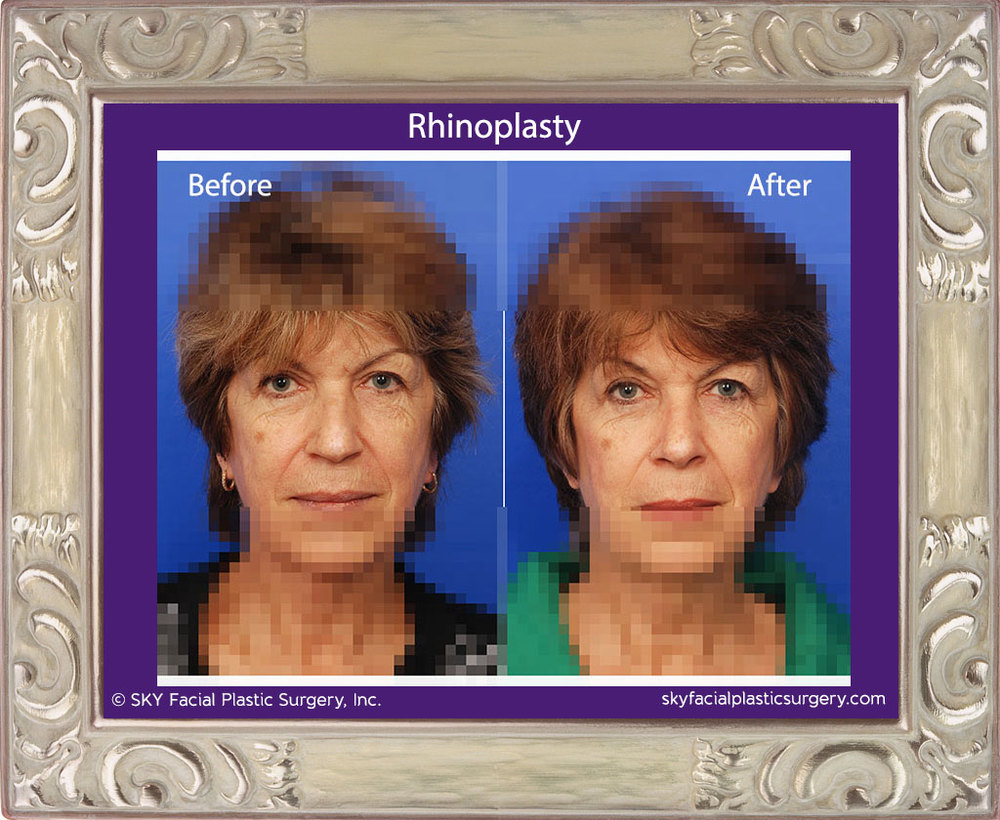 Copy of Rhinoplasty 21A