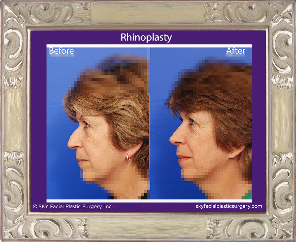 Copy of Rhinoplasty 21B