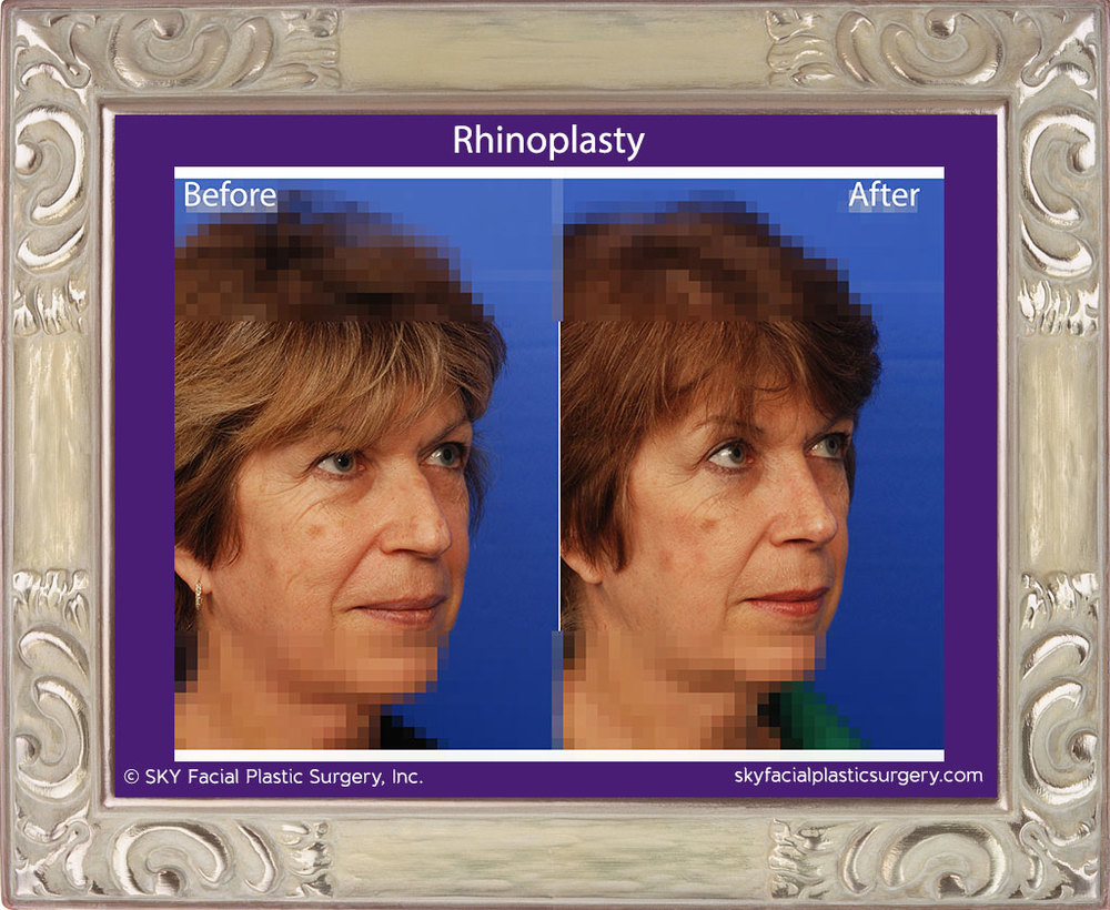 Copy of Rhinoplasty 21D