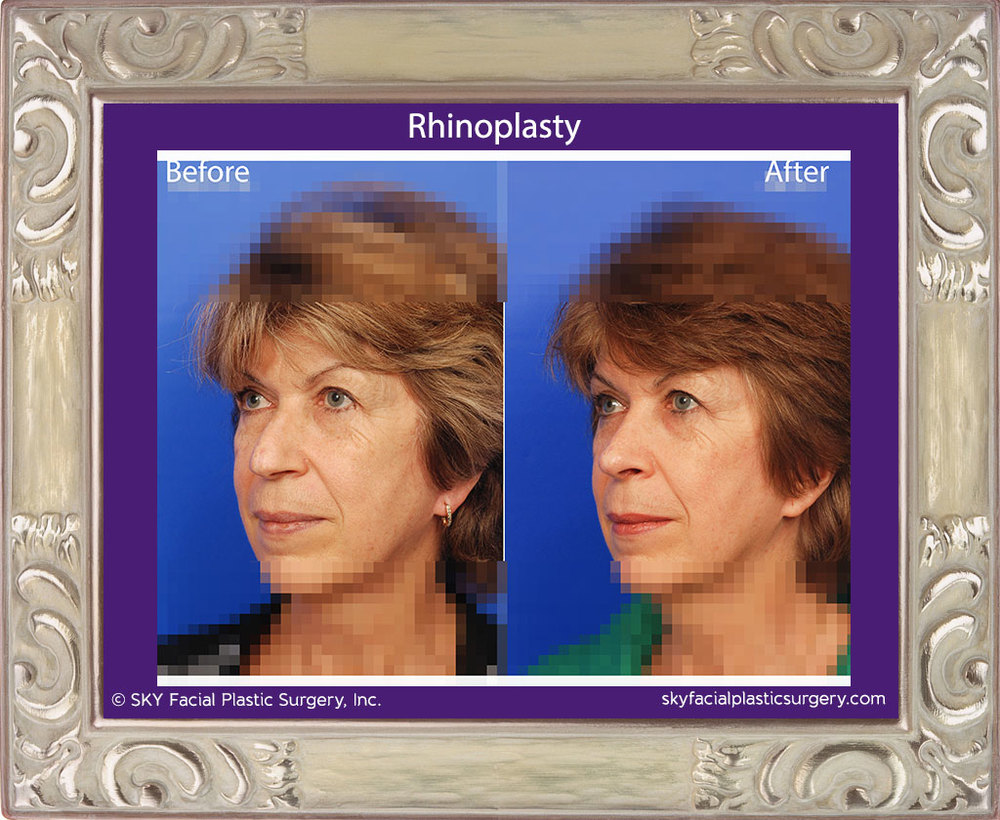 Copy of Rhinoplasty 21C