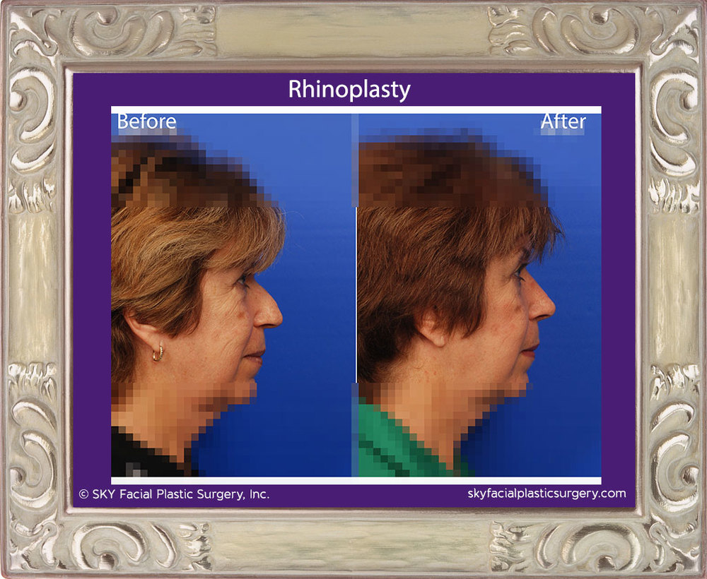 Copy of Rhinoplasty 21E